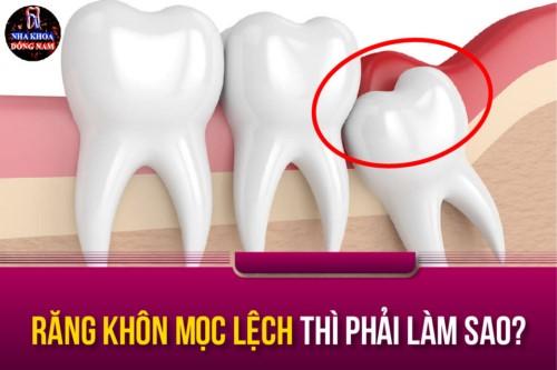 răng khôn mọc lệch thì phải làm sao