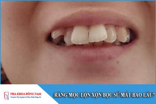 răng mọc lộn xộn bọc sứ mất bao lâu