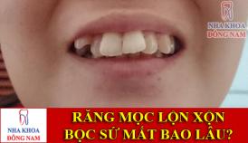 răng mọc lộn xộn bọc sứ mất bao lâu -1