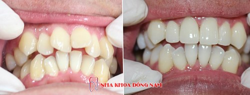 răng mọc lộn xộn bọc sứ mất bao lâu 1