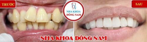 bọc răng sứ cho răng mọc lộn xộn, ố vàng