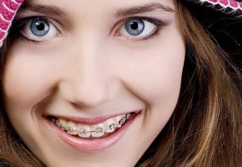 răng mọc lộn xộn bọc sứ mất bao lâu 2