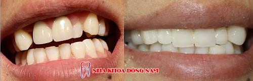 răng mọc lộn xộn bọc sứ mất bao lâu 3