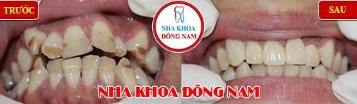 bọc sứ cho răng mọc lộn xộn nghiêm trọng, hở khớp cắn