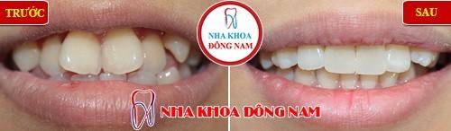 Bọc răng sứ cho các răng mọc lệch lạc hàm trên
