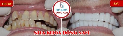 bọc sứ cho 2 hàm răng mọc lộn xộn và hở khớp cắn