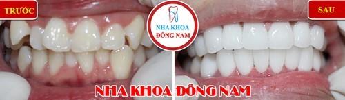 bọc sứ 2 hàm cho răng mọc lệch lạch, kích cỡ răng không đều