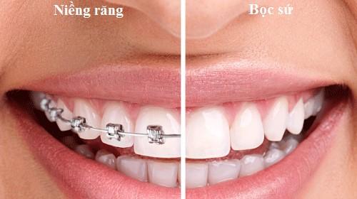 bọc sứ và niềng răng
