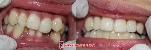 bọc răng sứ cho răng mọc lộn xộn hàm dưới