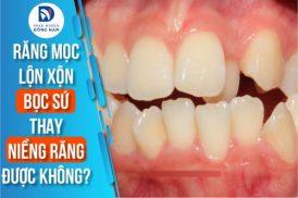 răng mọc lộn xộn có bọc sứ thay cho niềng răng được không