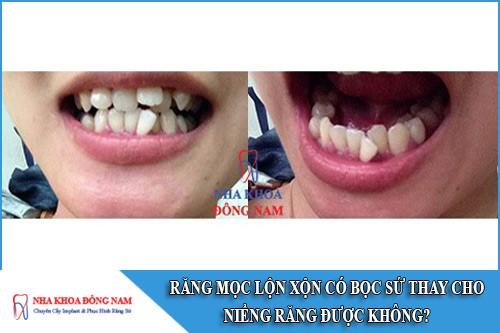 răng mọc lộn xộn bọc sứ thay niềng răng được không