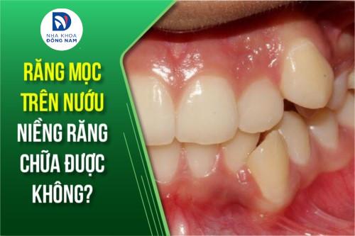 răng mọc trên nướu niềng răng chữa được không