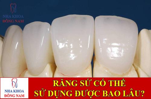 răng sứ có thể sử dụng được bao lâu -1