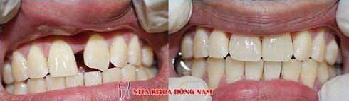 Trường hợp bọc sứ cho răng thưa hàm trên