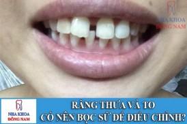 răng thưa và to có nên bọc sứ để điều chỉnh -1