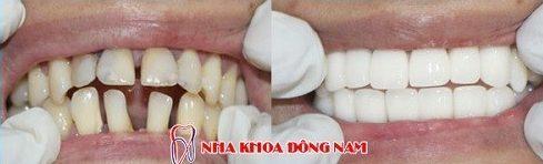 răng thưa và to có nên bọc sứ không 10