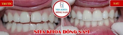 bọc sứ cho 2 hàm răng bị thưa, xỉn màu