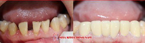 răng thưa và to có nên bọc sứ không 6