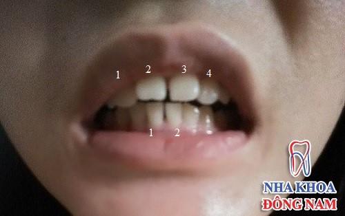 răng vừa thưa vừa hô có nên bọc sứ không 3