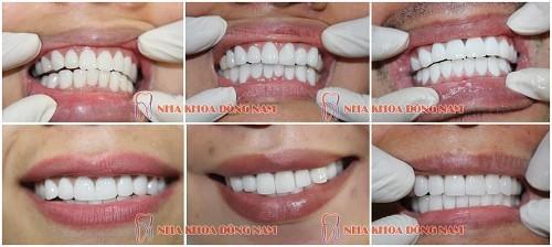 các trường hợp bọc răng sứ