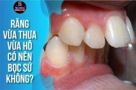 răng vừa thưa vừa hô có nên bọc sứ không