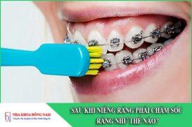 sau khi niềng răng phải chăm sóc răng như thế nào