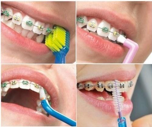 sau khi niềng răng phải chăm sóc răng như thế nào 1