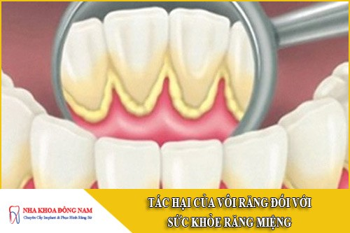 tác hại của vôi răng đối với sức khỏe răng miệng
