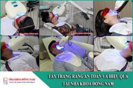 tẩy trắng răng an toàn và hiệu quả tại nha khoa đông nam