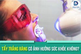 Tẩy Trắng Răng có ảnh hưởng sức khỏe không