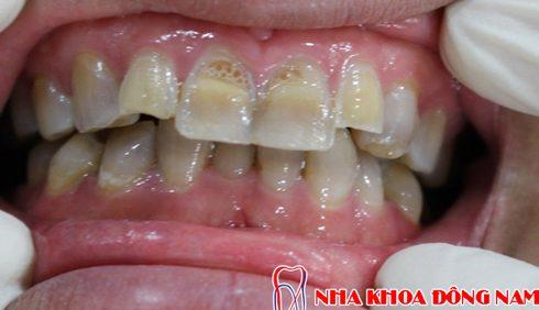 tẩy trằng răng có đau không 3