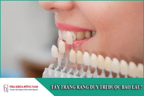 tẩy trắng răng duy trì được bao lâu