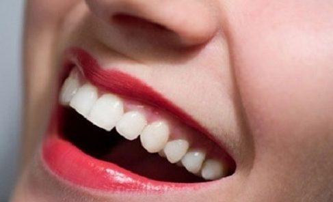 tẩy trắng răng duy trì được bao lâu 1
