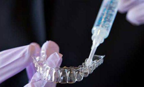 tẩy trắng răng duy trì được bao lâu 3