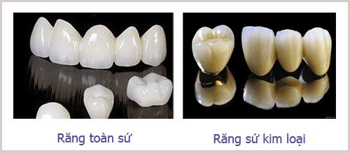 có phải răng đã lấy tủy là xem như bị hư không 3