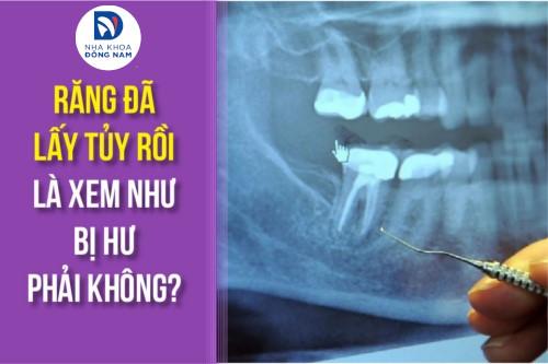 có phải răng đã lấy tủy là xem như bị hư không