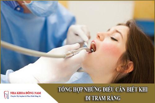 tổng hợp những điều cần biết khi đi trám răng