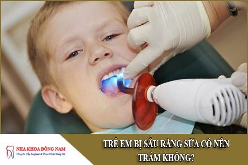trẻ em bị sâu răng sữa có nên trám không