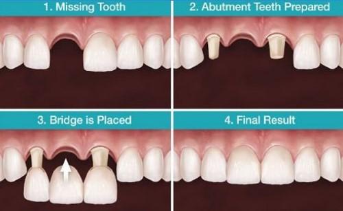phương pháp trồng răng cửa bằng cầu răng sứ