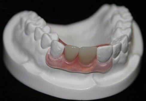 trồng răng cửa bằng hàm giả tháo lắp