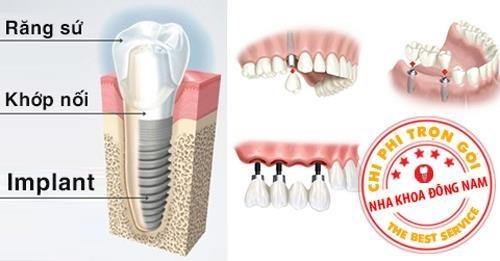 trồng răng giả cố định vĩnh viễn có đau không 4