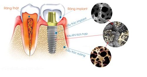 trồng răng giả như răng thật với Implant nha khoa1