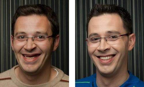 trồng răng giả như răng thật với Implant nha khoa 4