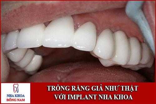 trồng răng giả như răng thật với Implant nha khoa
