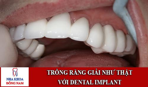 trồng răng giả như thật với implant nha khoa 1