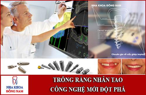 Trồng răng nhân tạo - Công nghệ mới đột phá