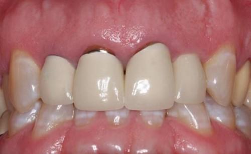 trồng răng sứ kim loại