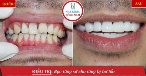 trồng răng sứ cho răng hư tổn