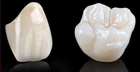 trồng răng sứ có bền không 1