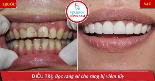 trồng răng sứ cho răng bị viêm tủy